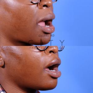 Lip lift 65 oblique R open