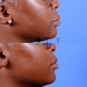 Lip lift 65 oblique R profile