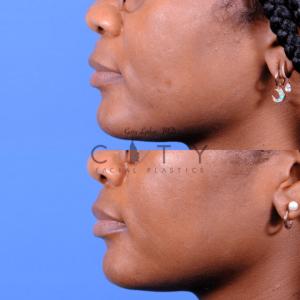 Lip lift 66 L profile