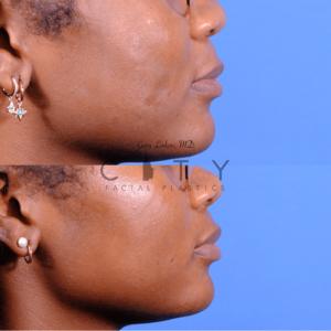 Lip lift 66 R profile