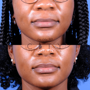 Lip lift 66 frontal mouth closed