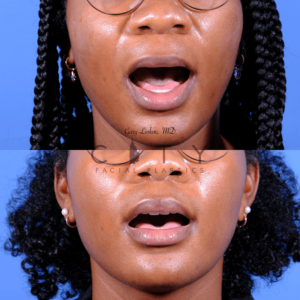 Lip lift 66 frontal mouth open