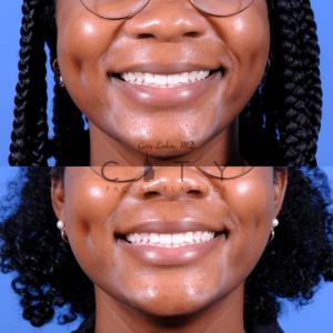 Lip lift 66 frontal smile