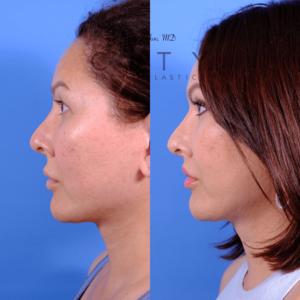 Lip lift 67 L profile