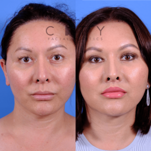 Lip lift 67 frontal mouth closed