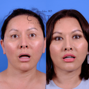 Lip lift 67 frontal mouth open