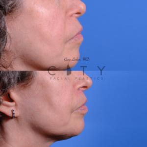 Lip lift 68 R profile