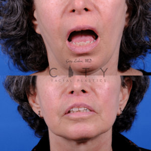 Lip lift 68 frontal mouth open