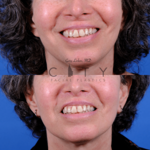 Lip lift 68 frontal smile